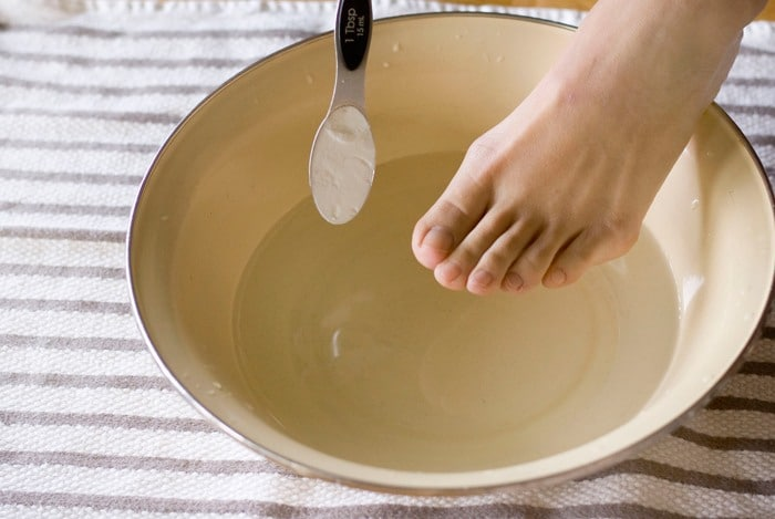 home remedies for calluses baking soda