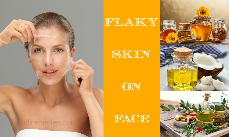 flaky skin on face