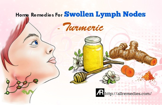 home remedies for swollen lymph nodes