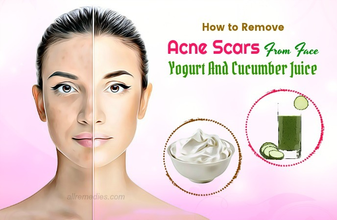 how to remove acne scars from face