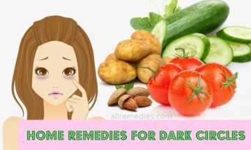 home remedies for dark circles 29 popular home remedies for circles 10341