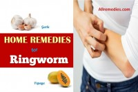 how to get rid of jock itch home remedies