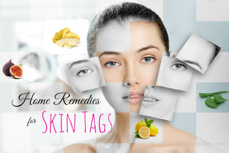 home remedies for skin tags