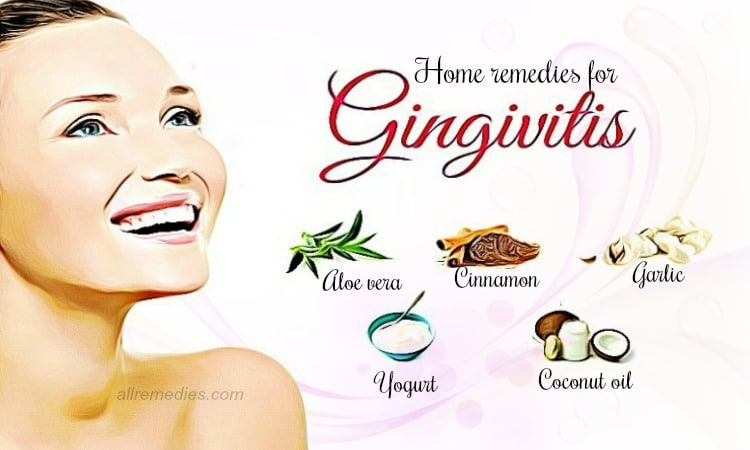 home remedies for gingivitis