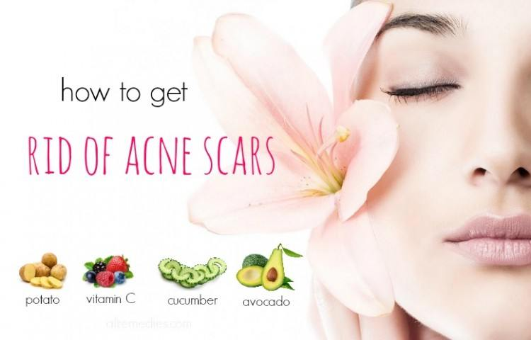 Would how to get rid of acne fast naturally