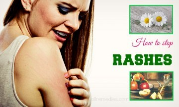 How to stop rashes