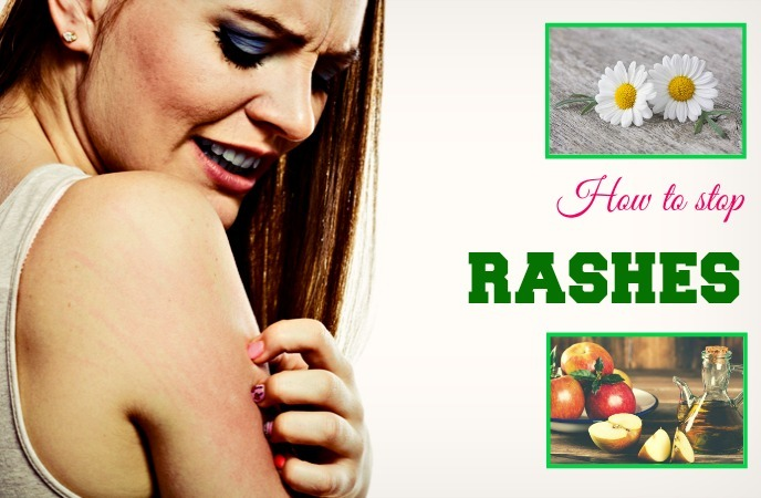 how to stop rashes1