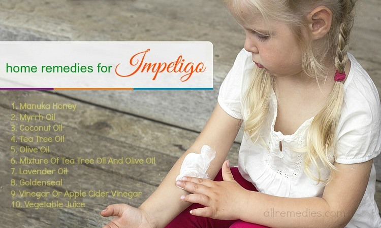20 Home Remedies for Impetigo: Causes, Symptoms, Prevention