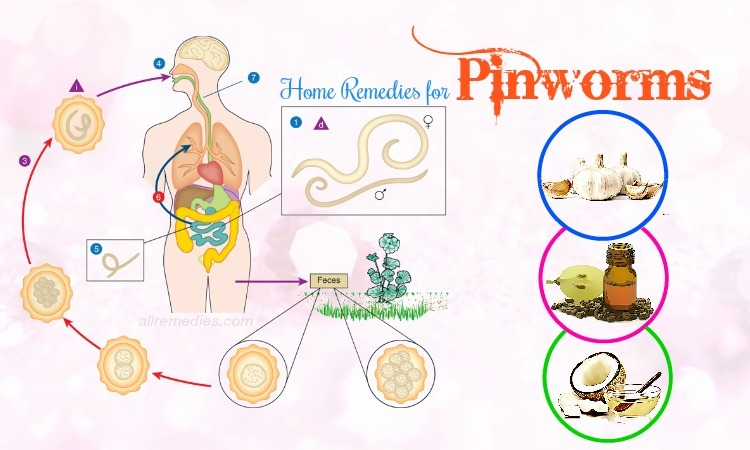 home remedies for pinworms.