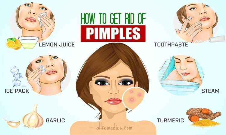 How To Cure Pimples Naturally