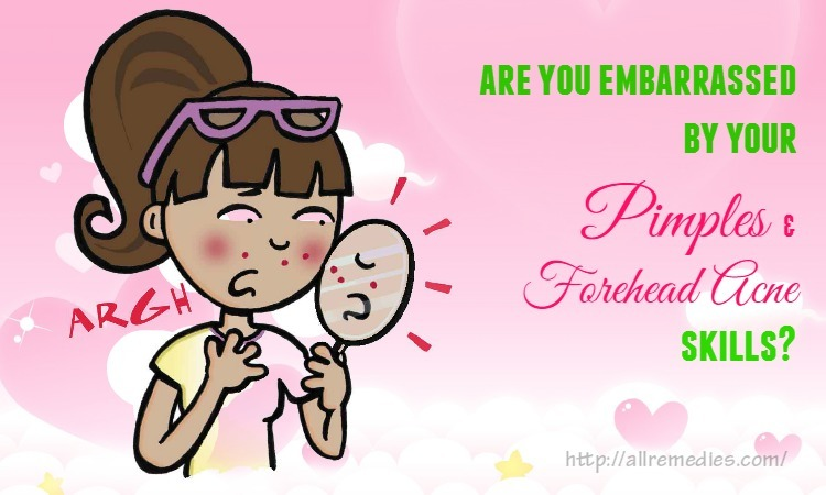are-you-embarrassed-by-your-pimples