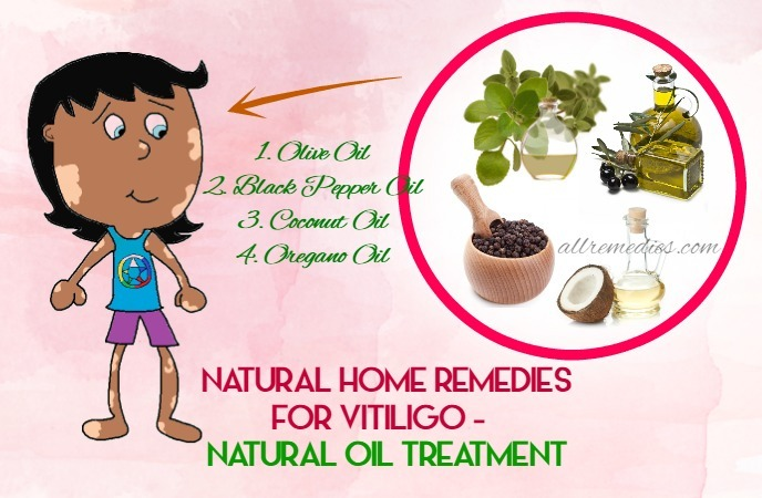 home-remedies-for-vitiligo