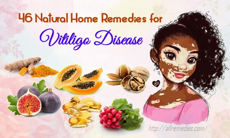 home-remedies-for-vitiligo