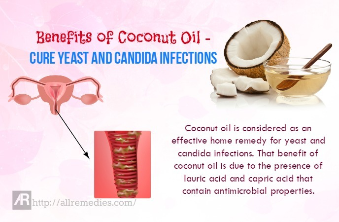 Summary -> The Candida Msm Cure Yeast Infection With Coconut Oil