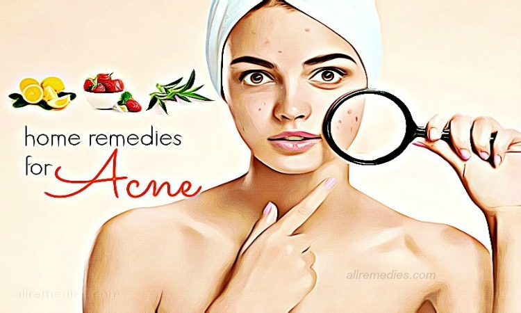 home-remedies-for-acne