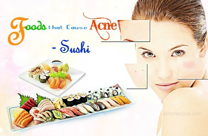 foods that cause acne