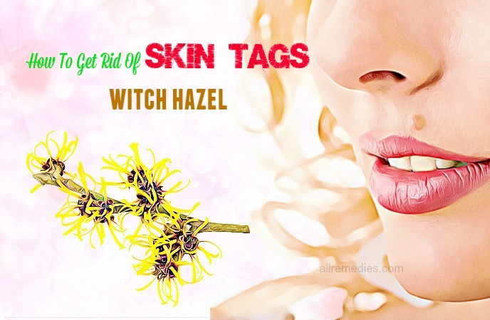 how to get rid of skin tags