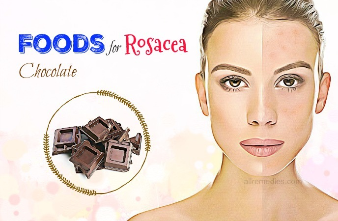 foods for rosacea