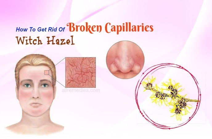 how to get rid of broken capillaries