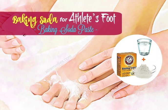 baking soda for athletes foot