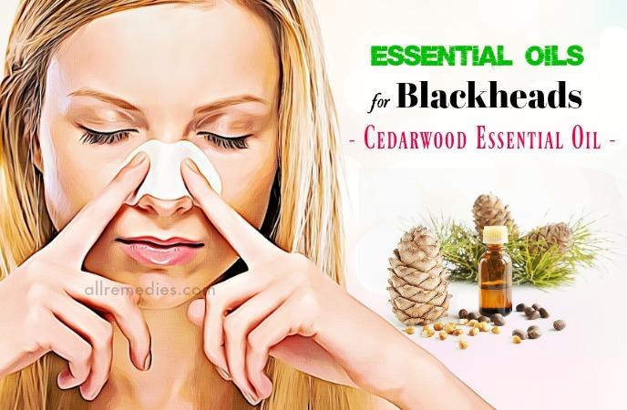 essential oils for blackheads
