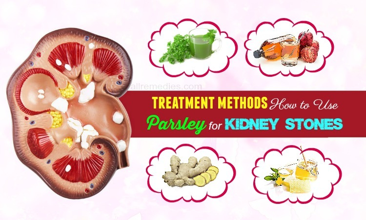 parsley for kidney stones