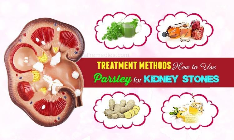 parsley for kidney stones