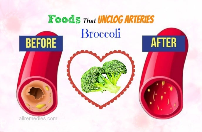 foods that unclog arteries fast -broccoli