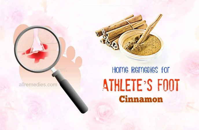 home remedies for athlete's foot and toenail fungus-cinnamon