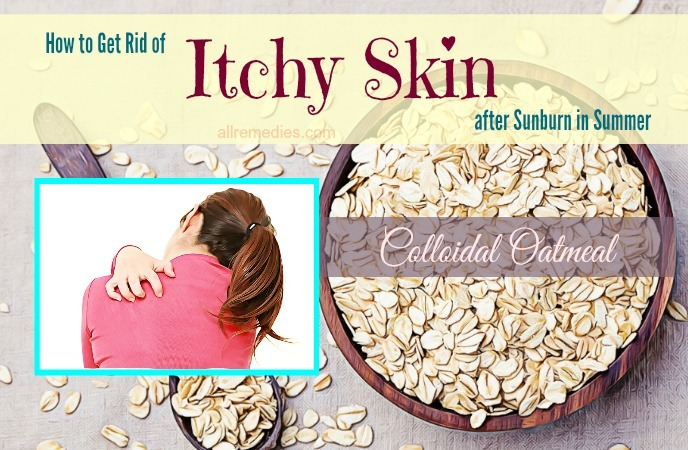 how to get rid of itchy skin after -colloidal oatmeal