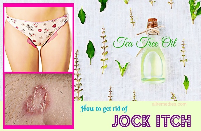 how to get rid of jock itch fast