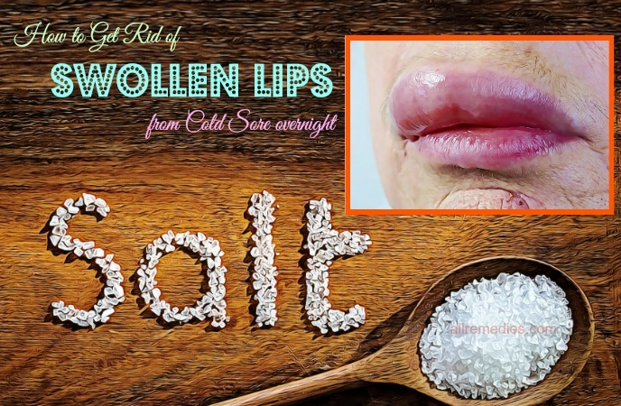 how to get rid of swollen lips fast
