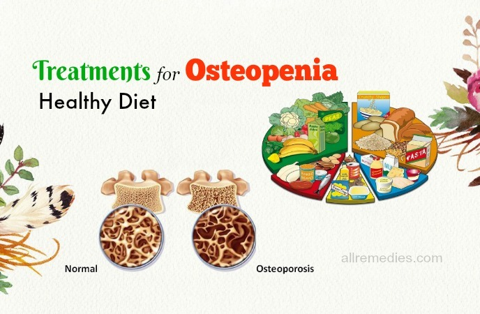 treatments for osteopenia