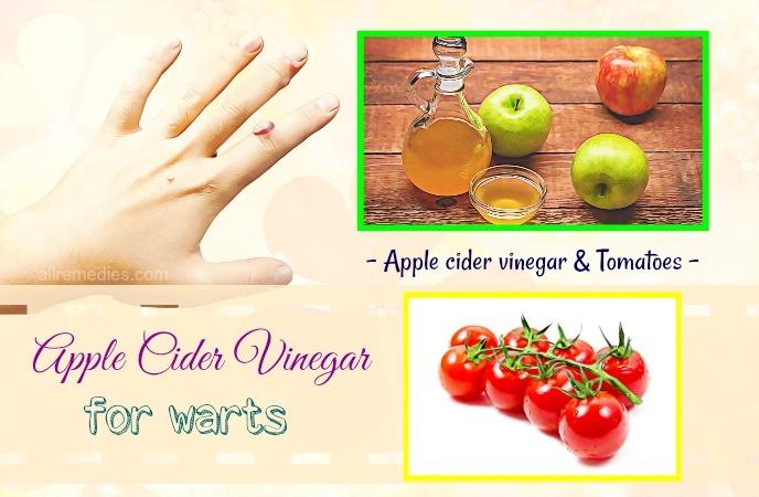 apple cider vinegar for warts on hand