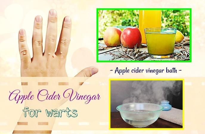 apple cider vinegar for warts removal