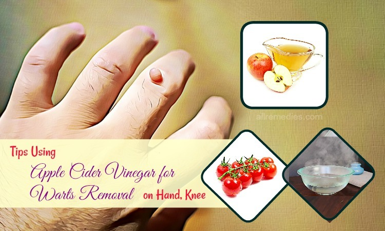 apple cider vinegar for warts