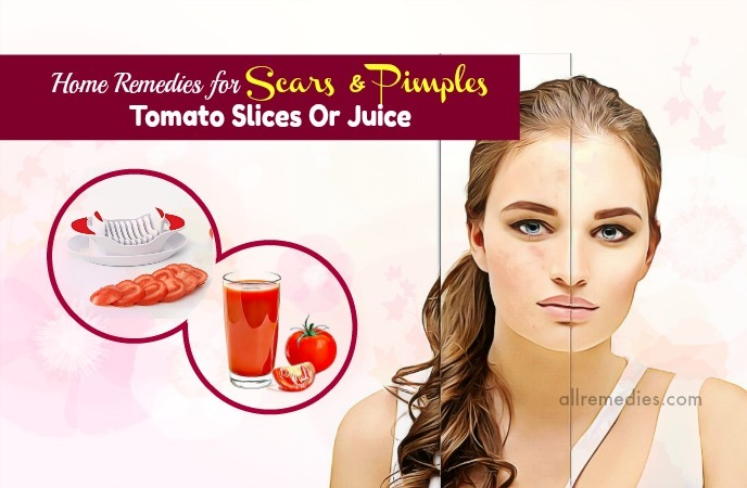 home remedies for scars on face