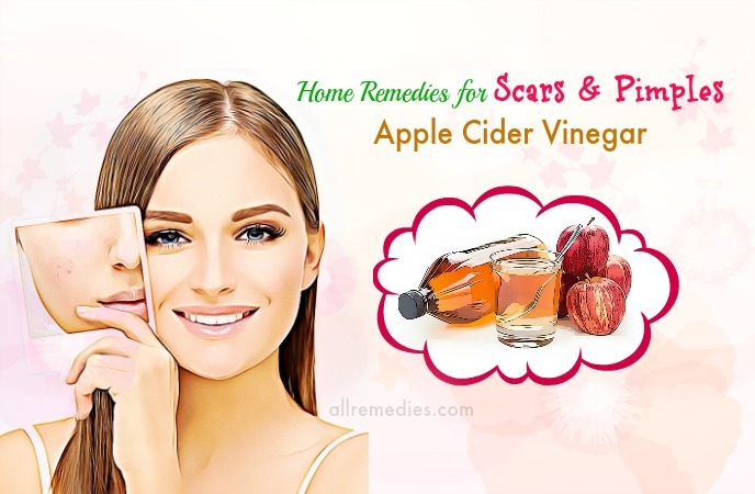 home remedies for scars overnight