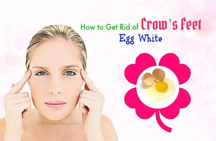 how to get rid of crows feet around eyes