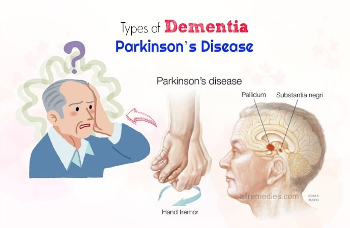 types of dementia and symptoms