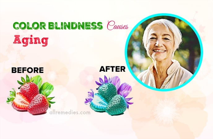 color blindness causes and effects