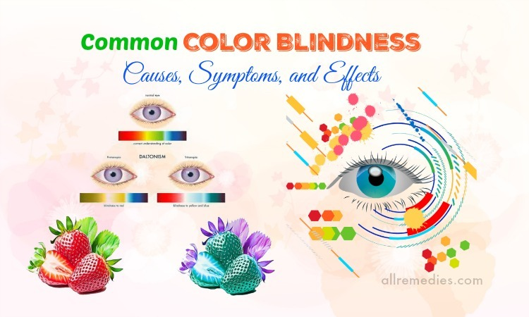 color blindness causes
