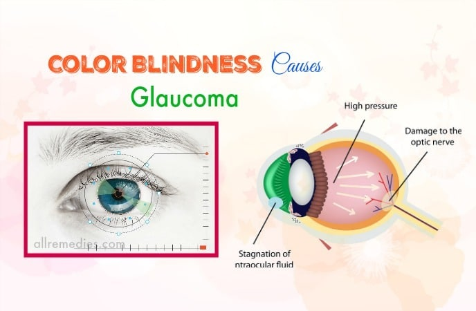 common color blindness causes