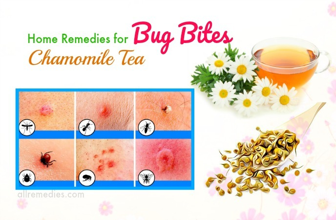 home remedies for bug bites itching