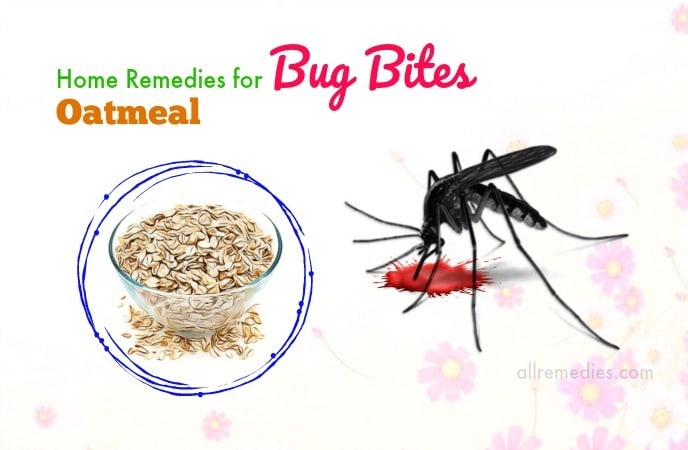 home remedies for bug bites on face
