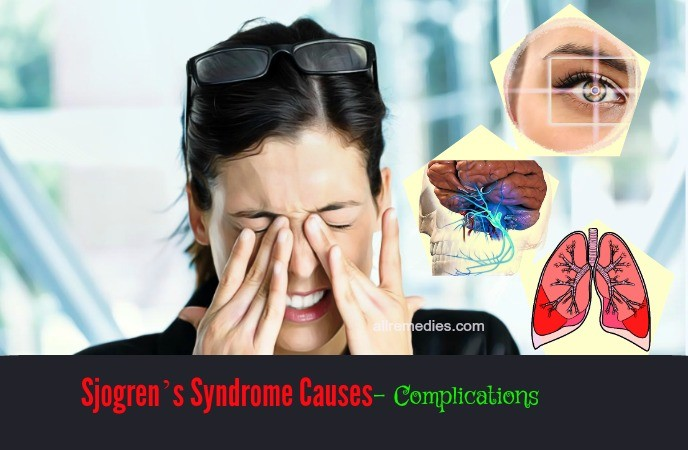 sjogren syndrome causes