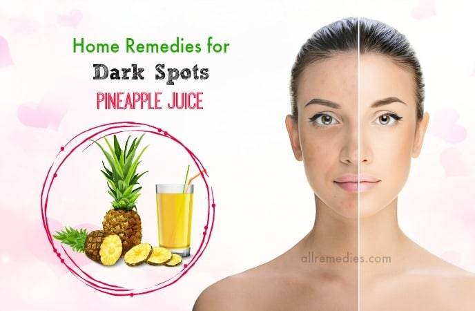 home remedies for dark spots on face