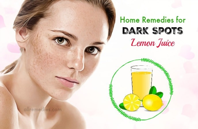 home remedies for dark spots removal