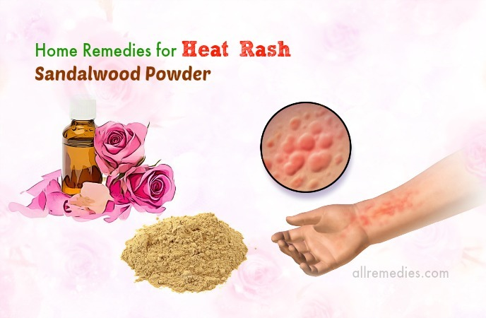 home remedies for heat rash on arms