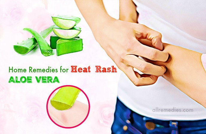 home remedies for heat rash on legs